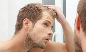 Cómo Detener Y Reducir Caída De Cabello – 14 Cosas Que Funcionaron Para Mí